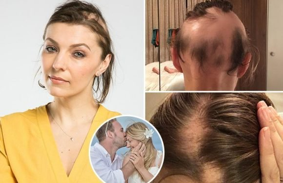 Woman, 42, reveals how stress of planning her dream wedding made her almost BALD
