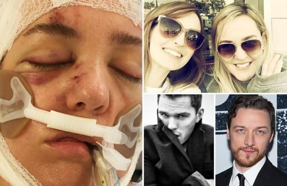 British photographer to the stars suffers horrific brain injury in car crash as Hollywood A-listers rush to support her