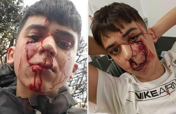 Schoolboy's shocking injuries show why you should always wear a cycle helmet