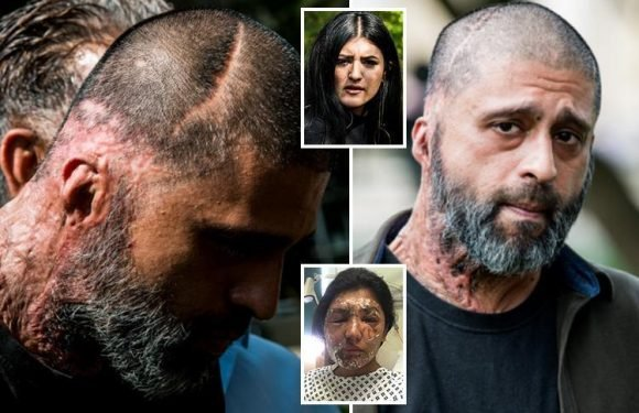 Acid victim bares his scars as 'animal' who attacked him and model cousin is jailed for 16 years