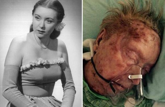 Former model 'eaten alive by scabies while being looked after in care home'