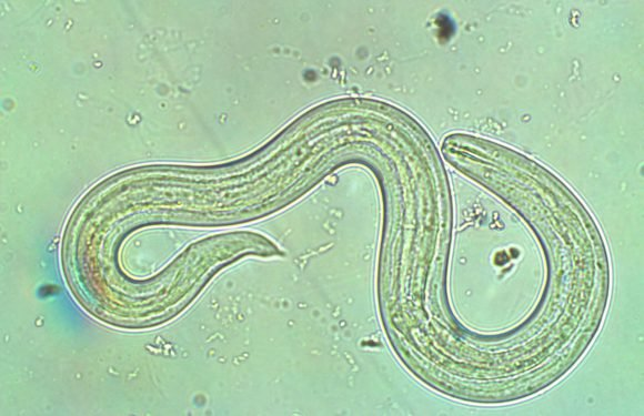 Teen contracts rat lungworm on vacation in Hawaii