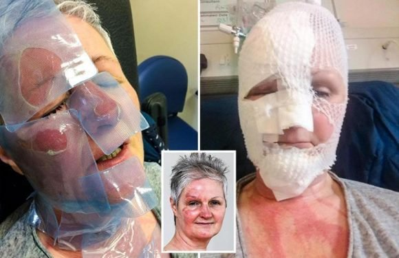 Gran left with horrific facial burns after trying to make poached egg in MICROWAVE