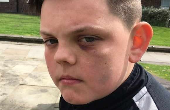 Mum slams school's 'bullying problem' after son 'stamped on' in vicious attack