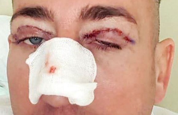 Christopher Maloney has eyelids cut and nose broken in gruesome procedure