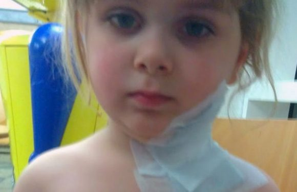Girl, 4, burnt after 'lump of coal spat out of steam engine and landed in pram'
