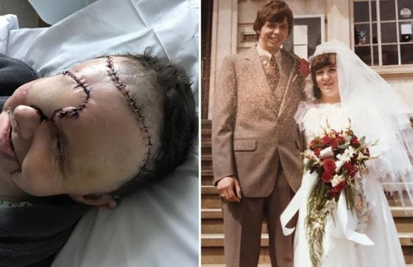 Dad lost half his face after eye cancer was 'misdiagnosed as migraine and a sore throat'