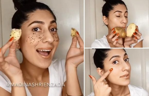 Can peeled potatoes cure undereye bags? Inside Instagram's most EXTRA 'beauty hack'