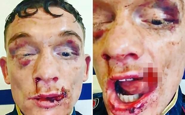 Boxer Mason Cartwright reveals horror torn lip hanging off face after being rushed to hospital for stitches following Darren Tetley loss
