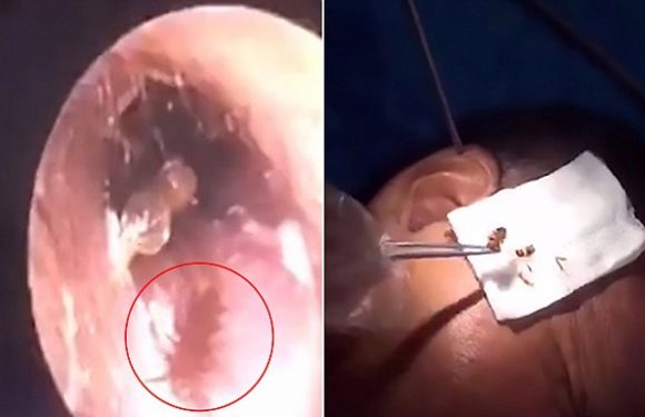 Cockroach removed from man's ear after crawling into it while he slept