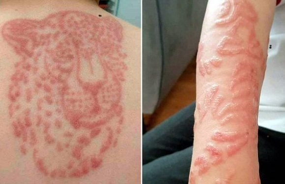 Two boys left with chemical burns from black Henna tattoos in Mallorca