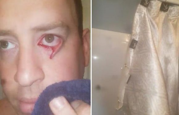 Bloke shares footage of his bloodied eyelid after ripping it open on a metal shower curtain hook