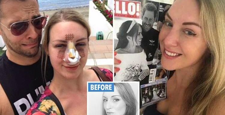 I spent £10,000 to get a Meghan Markle nose and smile – even though my man hates it