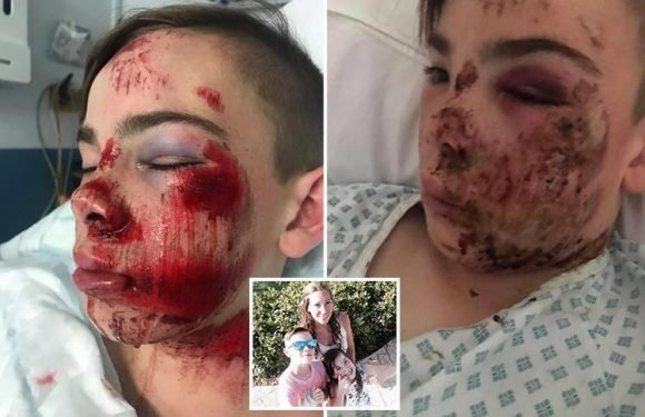 Mum releases hospital bed picture to show shocking head injuries of son, 12, who refused to wear a bike helmet as it was 'uncool'