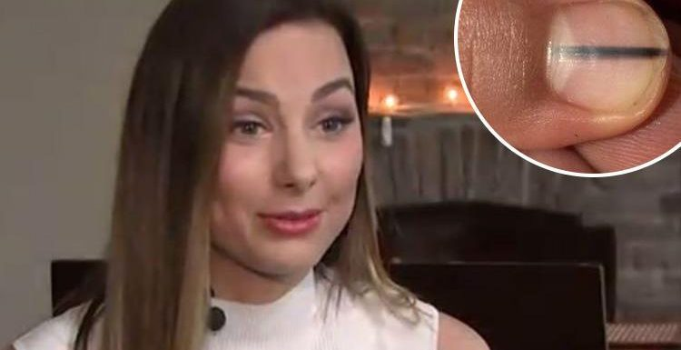 Beauty queen Karolina Jasko discovers getting her NAILS done gave her deadly cancer – after spotting telltale sign