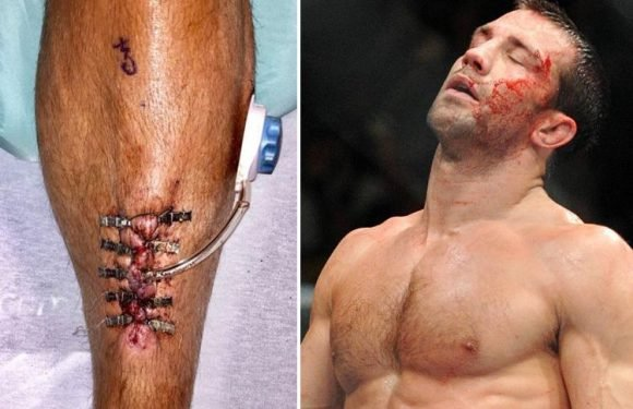UFC star and Ralph Lauren model Luke Rockhold suffers gruesome injury as shin stitches burst after surgery