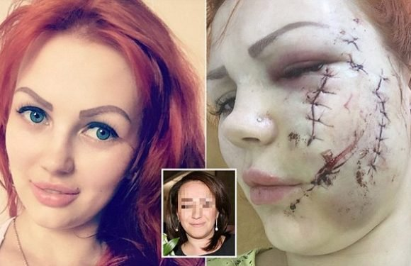 Russian woman is glassed and has face shredded in karaoke bar