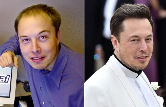 It's 'highly likely' Elon Musk spent over $20K on hair transplant surgery, doctor says