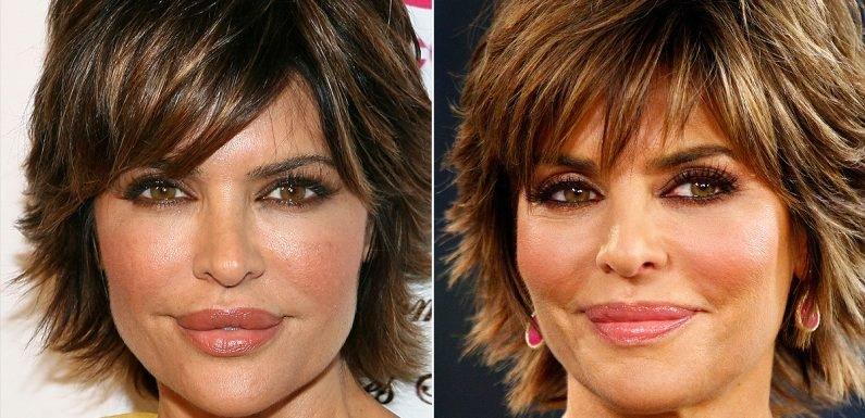 Before Kylie Jenner Stopped Her Lip Injections, Lisa Rinna Was the OG of Filler Regret: 'I Was Crazy to Get Them'