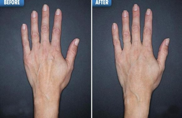 People are now getting filler in their HANDS to stop them looking wrinkly