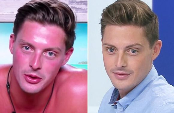 Dr Alex George reveals the real reason he went so red and never tanned in the villa