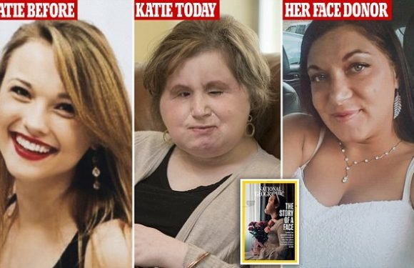 Girl who shot her face off in a failed suicide gets a face transplant