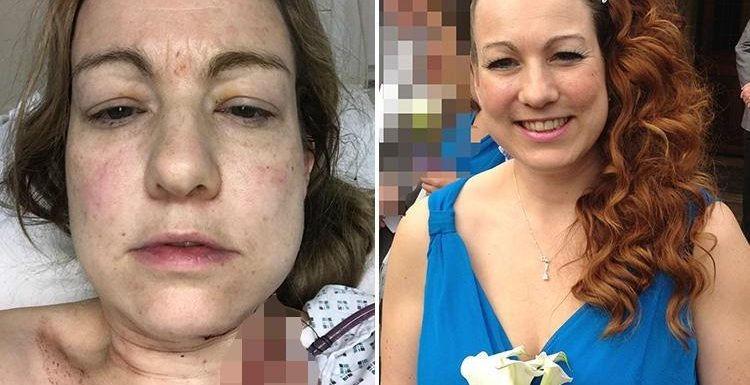 Mum-of-two who took a 10-session sunbed course before a wedding six years ago is diagnosed with skin cancer that's spread to her brain – and doctors believe there's a link