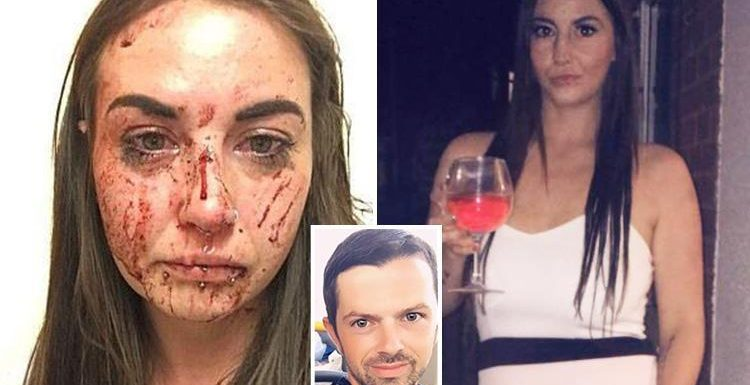 Girlfriend's horrific injuries as boyfriend ordered to pay just £75 in compensation