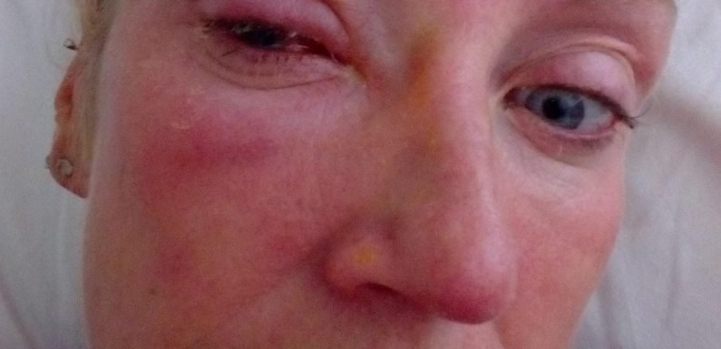 Mum's horror after being blinded by parasitic worm that wriggles into her EYEBALL while in the shower