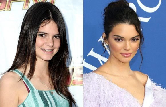 Kendall Jenner Looks Back on Her 'Ugly' Years While Wearing a Security Blanket: 'The Glow Up Is Nuts'
