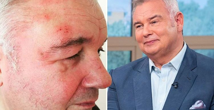 Eamonn Holmes reveals he's got shingle as he shows fans his painfully swollen face