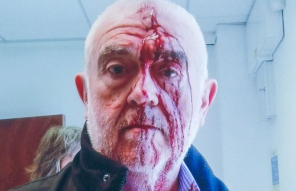Grandad, 62, battered by security guard while attending disability assessment