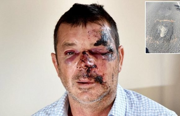 Cyclist left with a battered face from pothole claims it could KILL