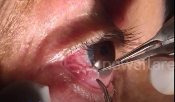 Stomach-churning video shows moment doctor pulls 15cm-long parasitic worm from man's eye