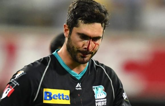Big Bash to the face leaves fieldsman with no catch, bloodied nose