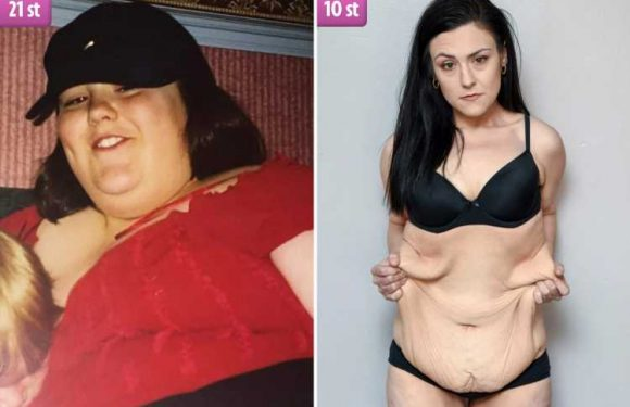 Woman left with a STONE of excess skin after losing half her 21st body weight is crowdfunding £12k to have it removed – after the NHS refuse op