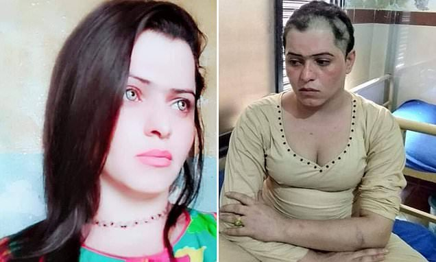 Trans woman kidnapped, beaten and has her head shaved by Pakistan gang