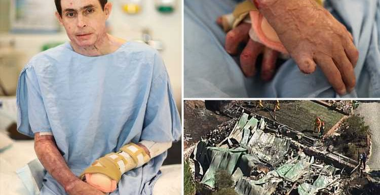 Burns victim who lost 95% of his skin in horror house fire gets 'new skin' in world-first op