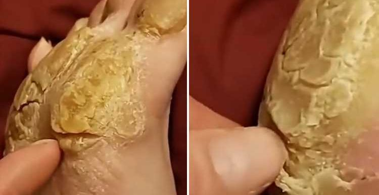 Stomach-churning video shows patient attempt to peel thick callus from bottom of foot – The Sun