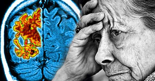 Cure for Alzheimer's could be on the cards after scientists reverse brain ageing