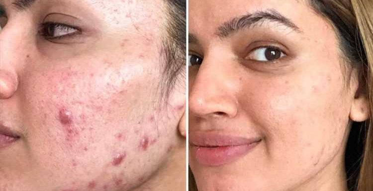 Acne sufferer claims £6.50 Body Shop tea tree wash helped cleared her skin in just two months