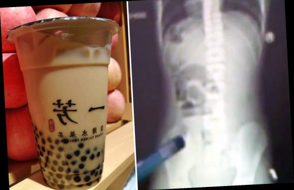 Teen left in agony after 'solid objects' blocking his bowels turn out to be bubble tea – The Sun