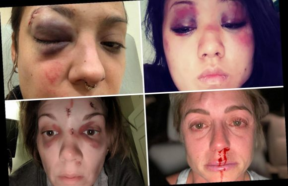 Women share horrendous pictures of injuries to raise awareness of domestic violence as 14 women are killed in 3 weeks