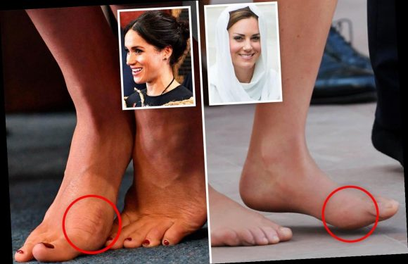 How Kate Middleton and Meghan Markle's feet have bunions and fallen arches after glitzy royal events took their toll
