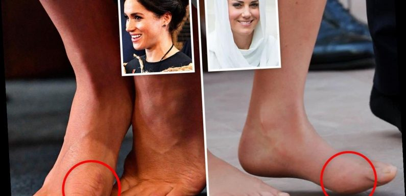 How Kate Middleton And Meghan Markle S Feet Have Bunions And Fallen Arches After Glitzy Royal Events Took Their Toll Wsbuzz Com