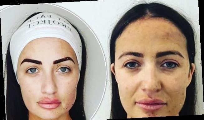Chantelle Houghton displays her bare-faced complexion