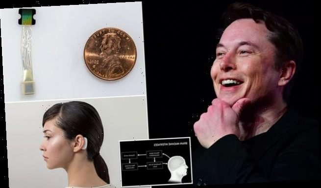 Elon Musk is just hours away from demonstrating his Neuralink implant