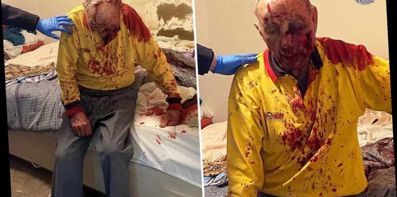 Pensioner, 84, fighting for his life after being brutally beaten outside his home as pics show him covered in blood