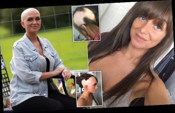 Alopecia sufferer, 27, shaves her head completely bald