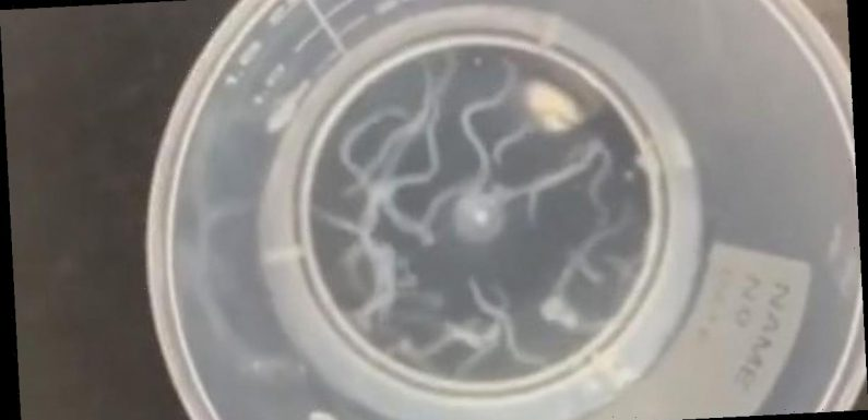 Stomach-churning moment doctor removes 20 live worms from man's eyelid